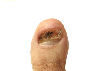 Toe without nail