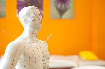 Akupunkturmann