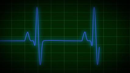EKG electrocardiogram pulse