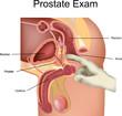 ������, ������: Prostate Exam
