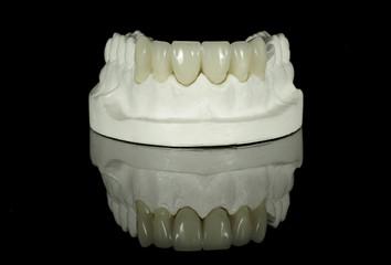 Crown Bridge on Dental Model