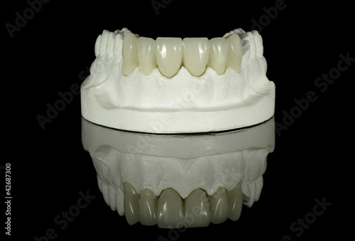 Crown Bridge on Dental Model