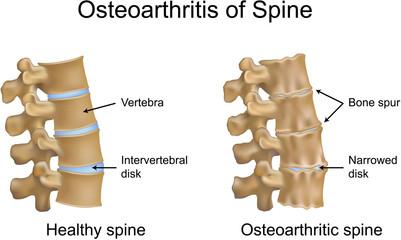 Osteoarthritis of Spine
