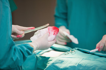 Surgeon doing an operation while holding surgical tissue