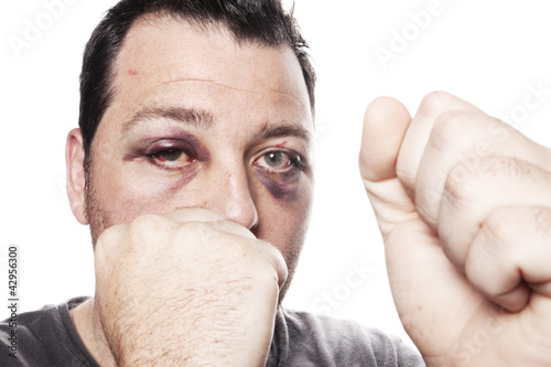black eye injury boxer violence isolated