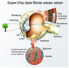 Spezial-Chip für Blinde