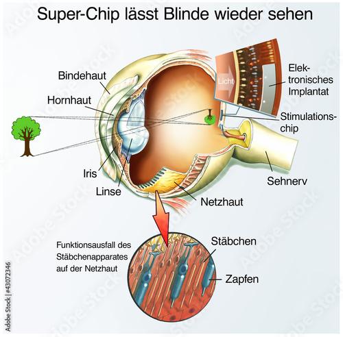 canvas print picture Spezial-Chip für Blinde