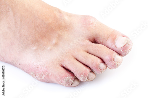 single male foot with eczema isolated on white background