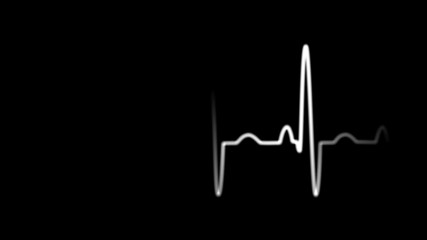 EKG Animation with Alpha Channel