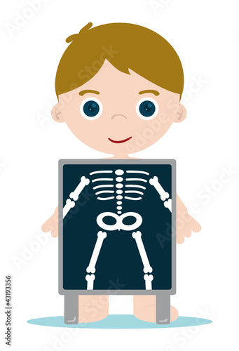 x ray check bones kid