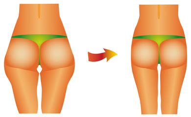 Diet beauty before after female buttocks