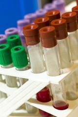 Test tubes for blood samples