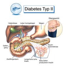 Bauchspeicheldrüse.Diabetes Typ II