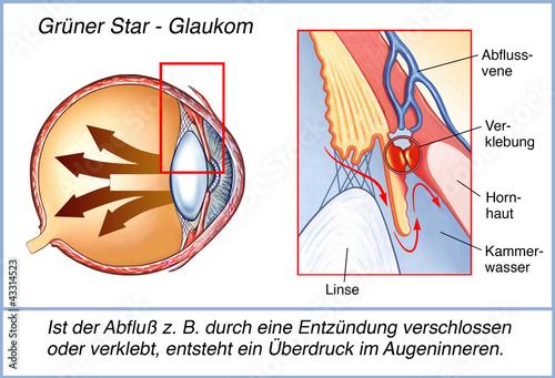 canvas print picture Der grüne Star.Überdruck.Glaukom