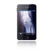 Smartphone mit Röntgenbild App für Ärzte