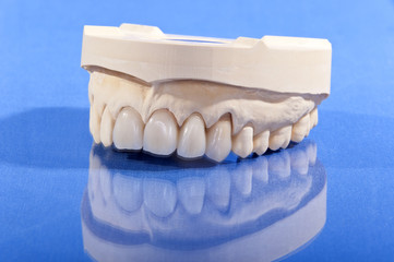 Oberkiefer – Zahnersatz