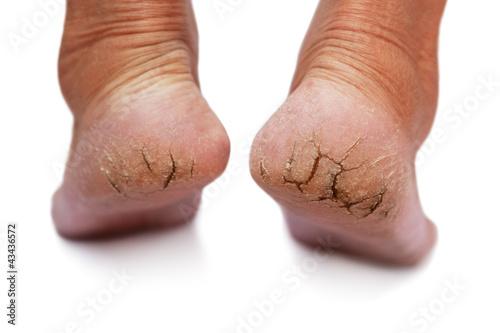 chapped heel