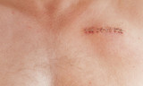 pacemaker scar poster