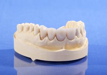 Zahnersatz im Oberkiefer