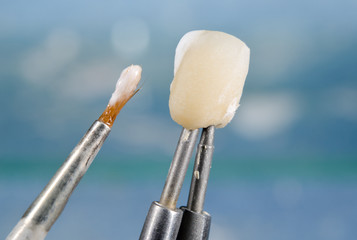 applying ceramic material on dental crown