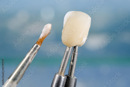 applying ceramic material on dental crown