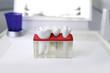 Zahnimplantat Modell