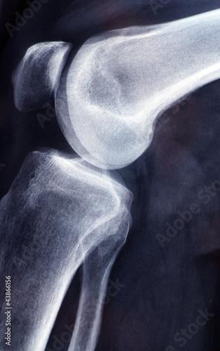 Röntgenbild Kniegelenk - angewinkelt