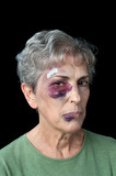 Beaten elderly woman