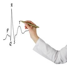 drawing ECG