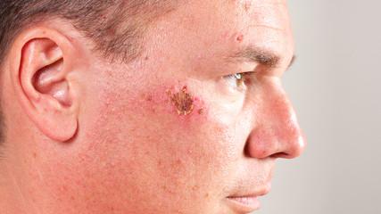 Verletzung im Gesicht 16:9