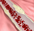 Coronary atherosclerosis desease