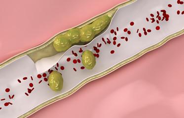 Coronary cholesterol  travels through the circulatory system