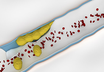 Formation of Plaque in the Arterial Wall - cholesterol