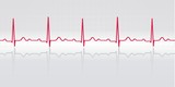 Sinus rhythm. ECG with grid, reflection. Vector illustration.