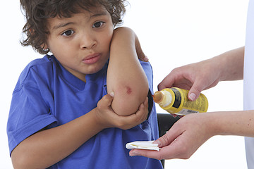 Infirmerie - Enfant blessé au coude