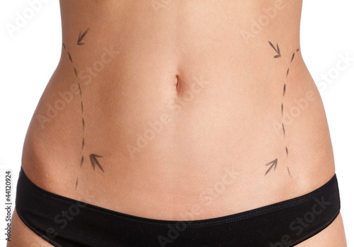 Liposuction, isolated, white background