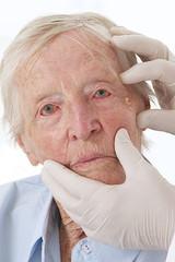 Dermatologie - Lésion cutanée