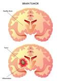tumore cerebrale poster