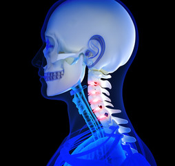 Human Neck pain focusing on area's of pain