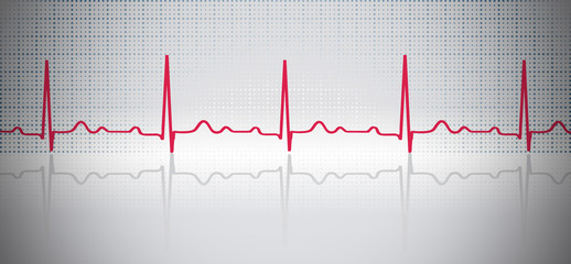 ECG background