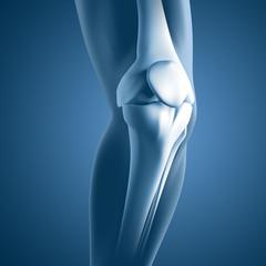 Knie-Schmerzen - 3D Grafik