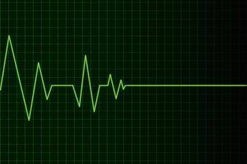 elettrocardio