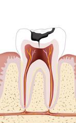 Zahn mit Karies, Endodontie 1