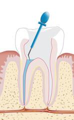 Zahnwurzelbehandlung, Endodontie 3