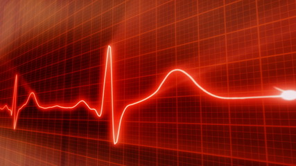 loop red background EKG electrocardiogram pulse waveform