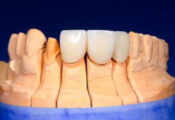 Modell mit Zahnersatz Front