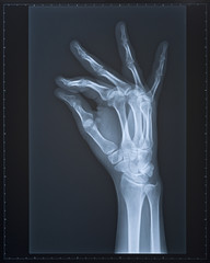 Hand X-ray. Female.