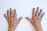 Closeup of senior hands with strong arthritis