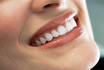 Close up of smiling woman's teeth