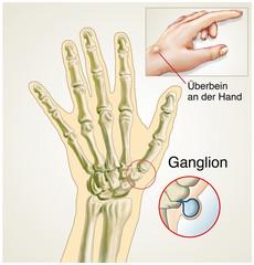 Ganglion.Überbein an der Hand